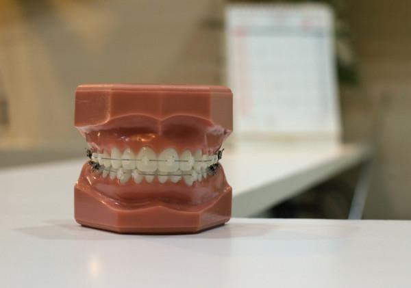 歯列矯正と虫歯治療のタイミング
